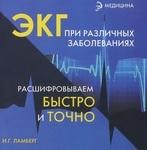 ЭКГ при различных заболеваниях. Расшифровываем быстро и точно