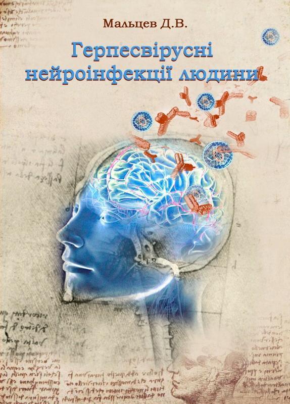 """Купить книгу """"Герпесвірусні нейроінфекції людини"""", автор Д.В. Мальцев"""